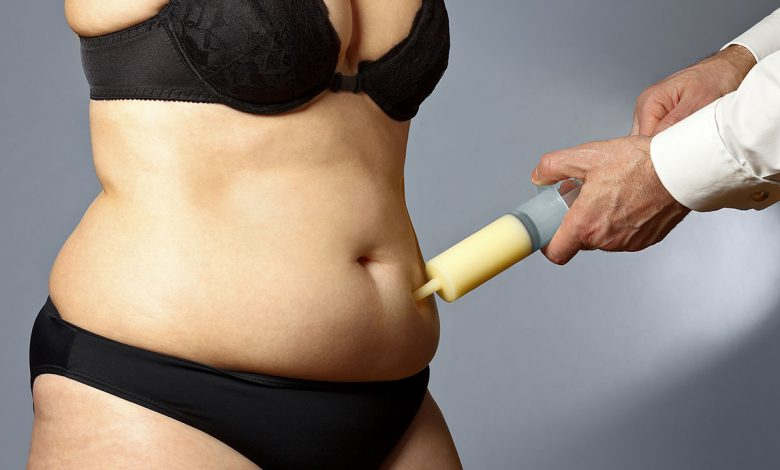 Photo of WHO IS A GOOD CANDIDATE FOR A TUMMY TUCK?