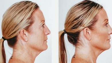 Photo of WHAT IS RHINOPLASTY?